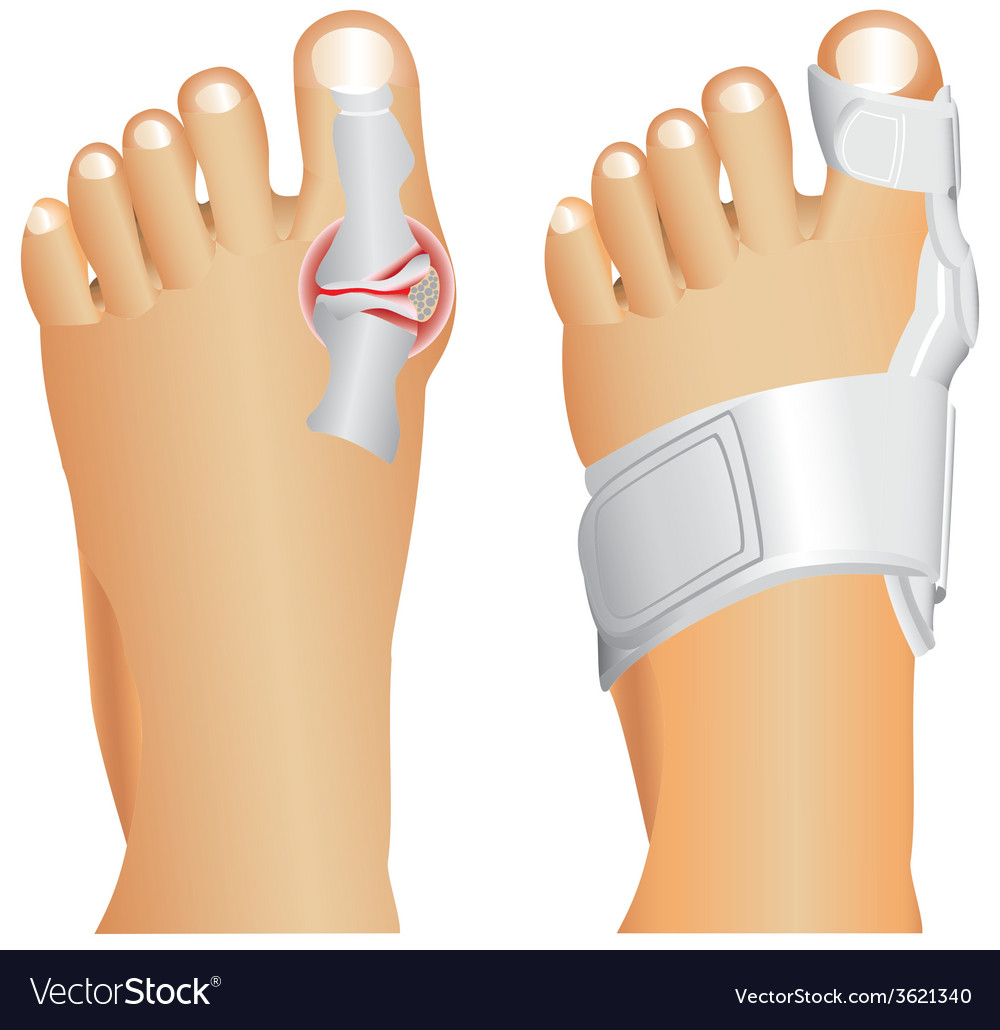 Big toe injury vector | Price: 1 Credit (USD $1)