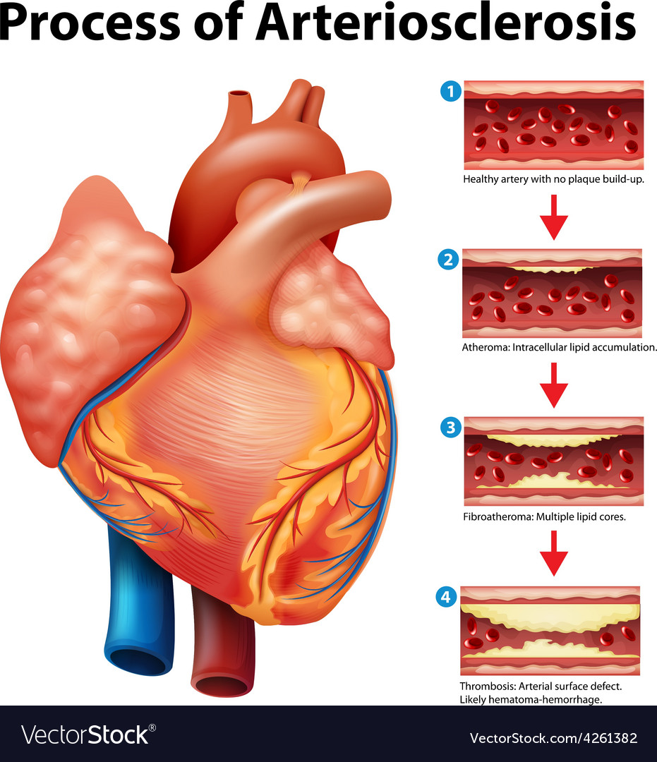 Process of arteriosclerosis vector | Price: 1 Credit (USD $1)