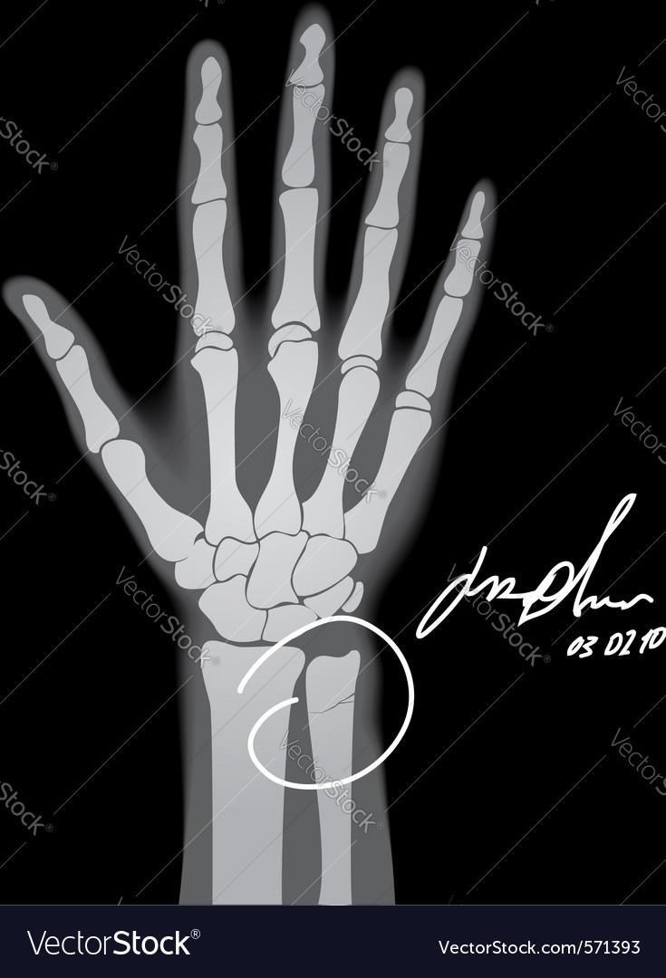 Broken hand xray vector | Price: 1 Credit (USD $1)