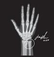 Broken hand xray vector