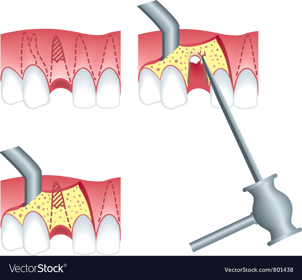 Root canal surgery vector | Price: 1 Credit (USD $1)