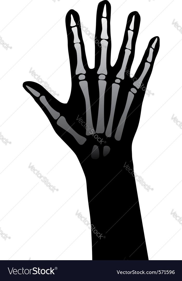 Hand xray vector   Price: 1 Credit (USD $1)