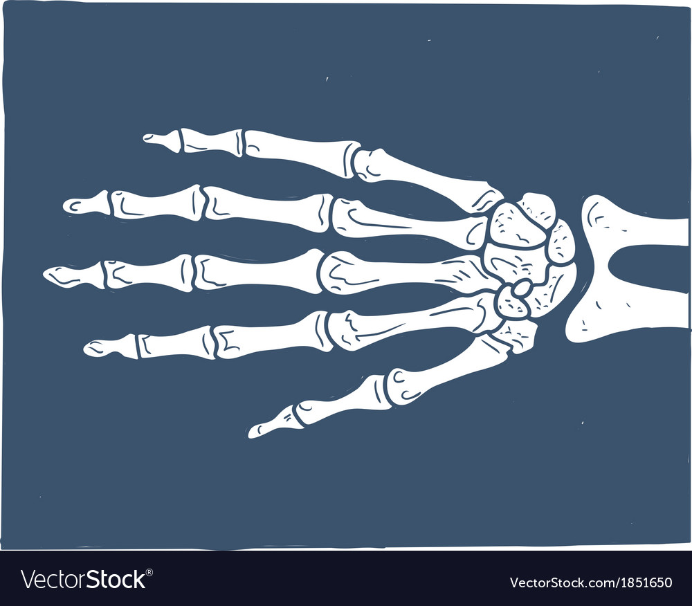 Hand x-ray picture vector | Price: 1 Credit (USD $1)