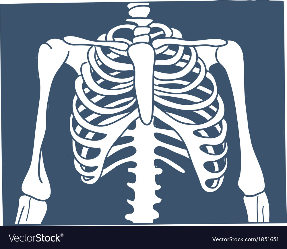 Thorax x-ray picture vector | Price: 1 Credit (USD $1)