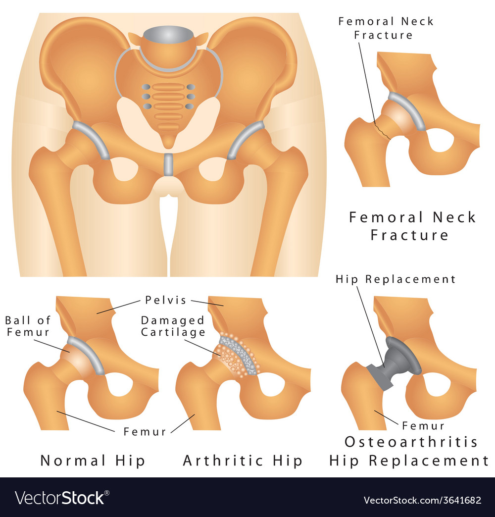 Hip joint vector | Price: 1 Credit (USD $1)