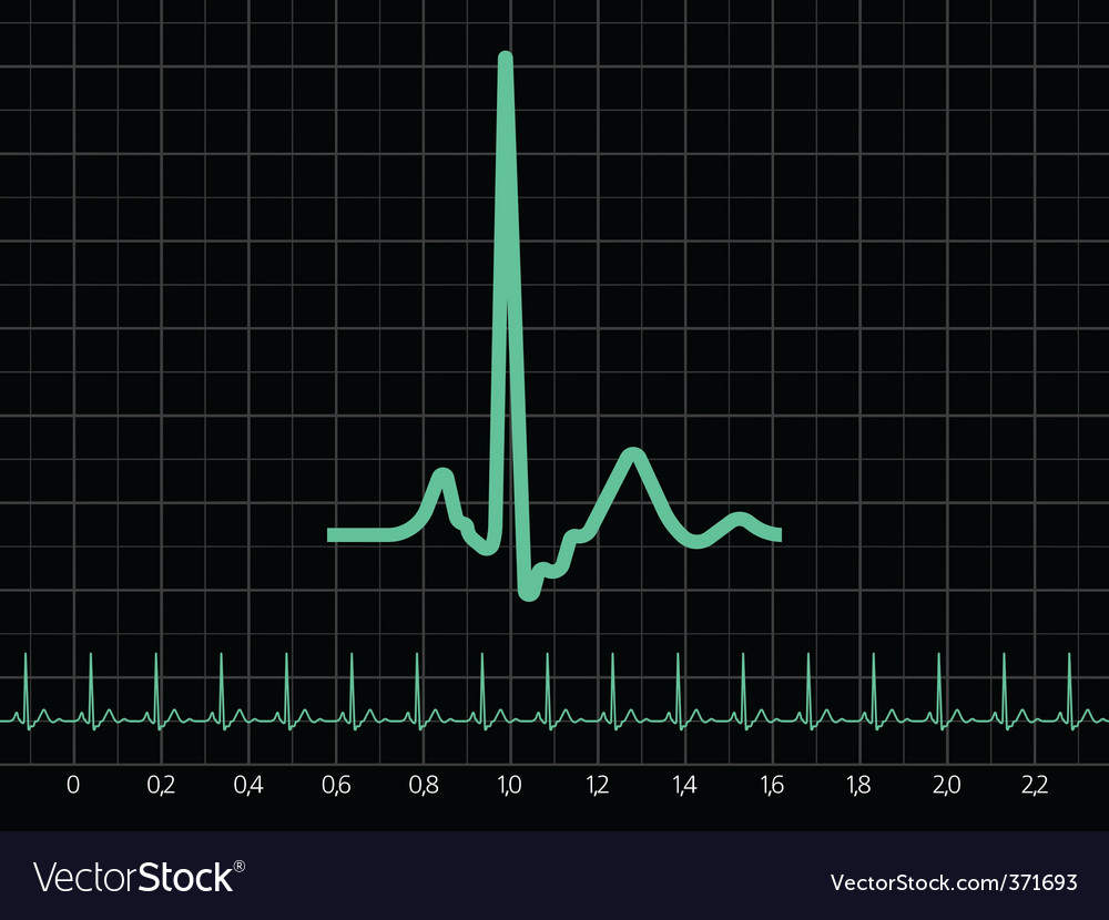 Electrocardiogram ekg vector | Price: 1 Credit (USD $1)