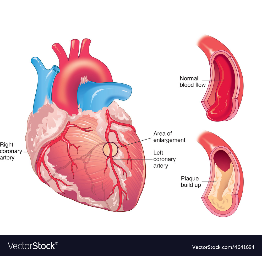 Coronary artery disease vector   Price: 3 Credit (USD $3)