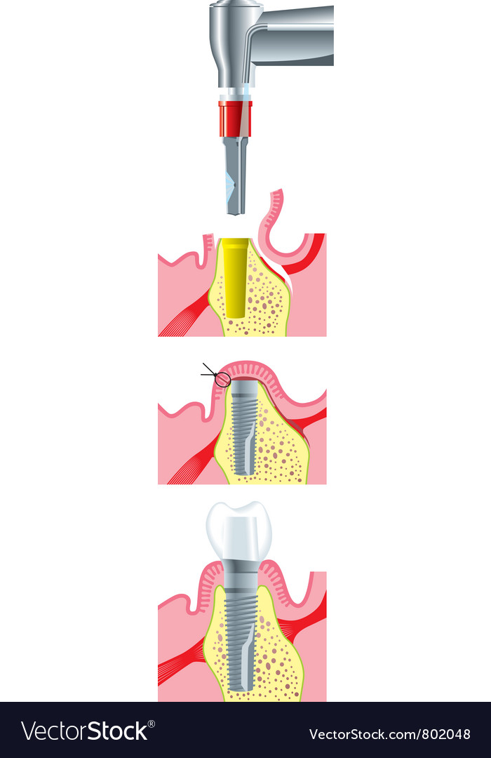 Dental implant surgery vector | Price: 1 Credit (USD $1)