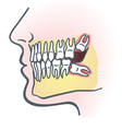 Impacted wisdom tooth vector