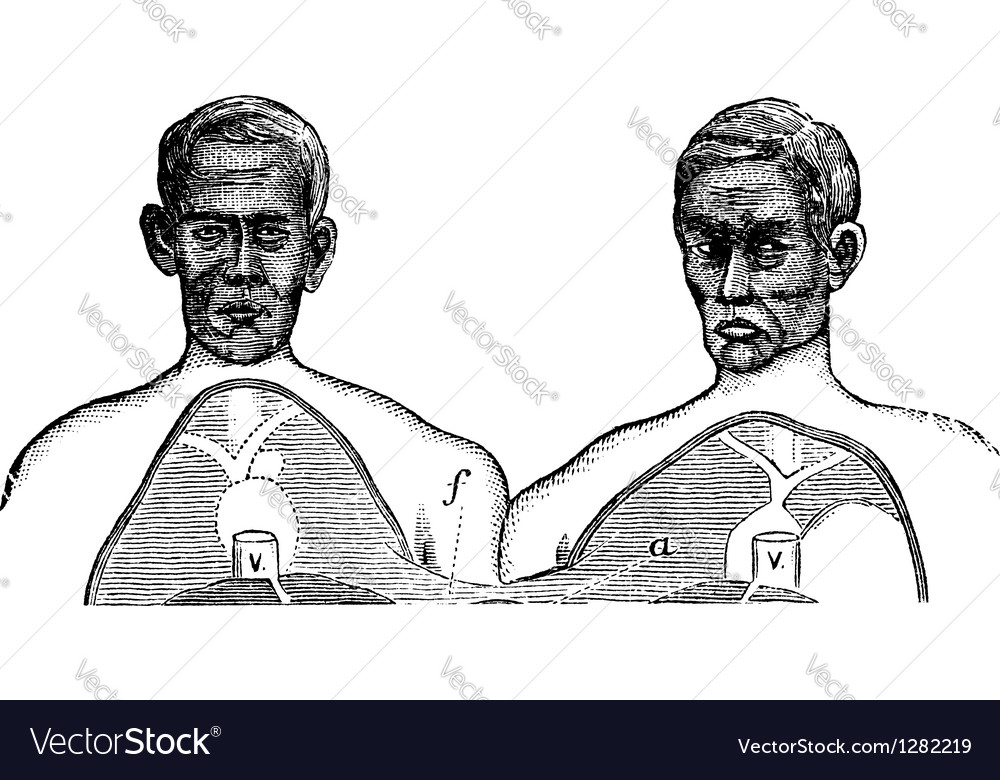 Siamese twins vintage engraving vector | Price: 1 Credit (USD $1)