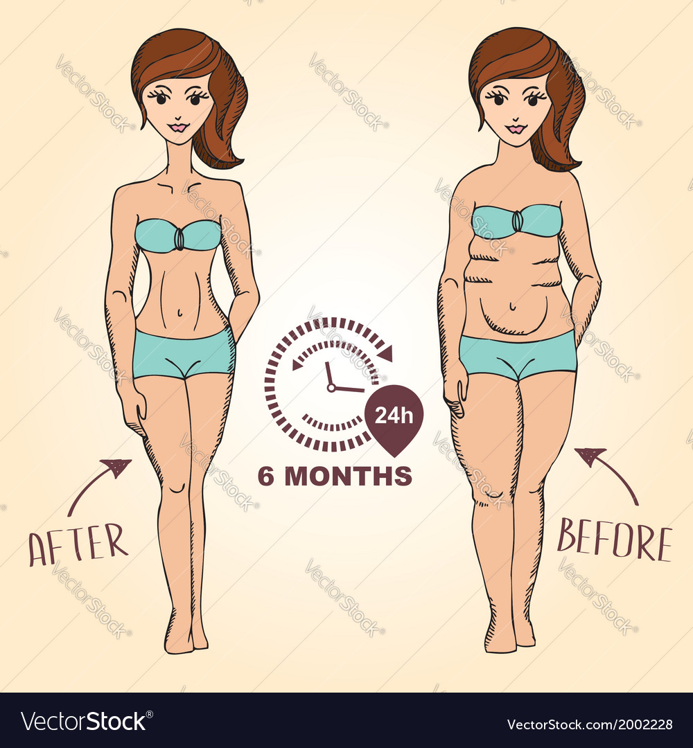 Before and after fat girl and slim girl vector | Price: 1 Credit (USD $1)