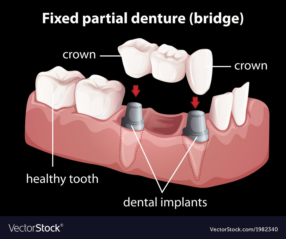 A fixed partial denture vector | Price: 1 Credit (USD $1)