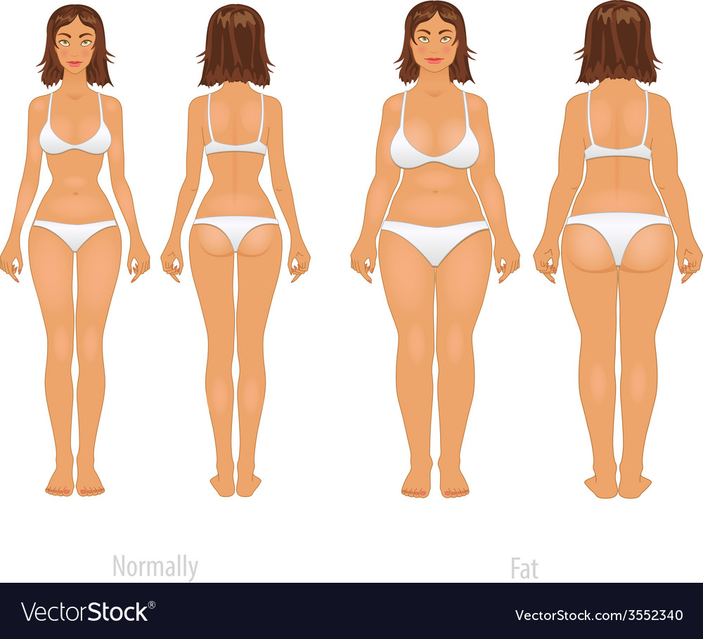 Different body types set vector | Price: 1 Credit (USD $1)
