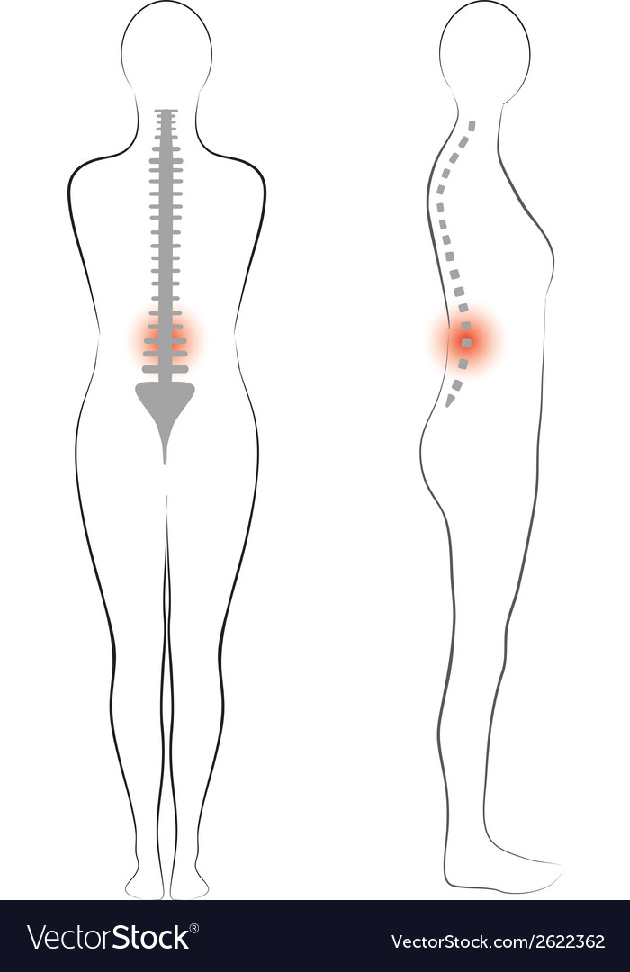 Woman body shape vertebrae pain vector | Price: 1 Credit (USD $1)