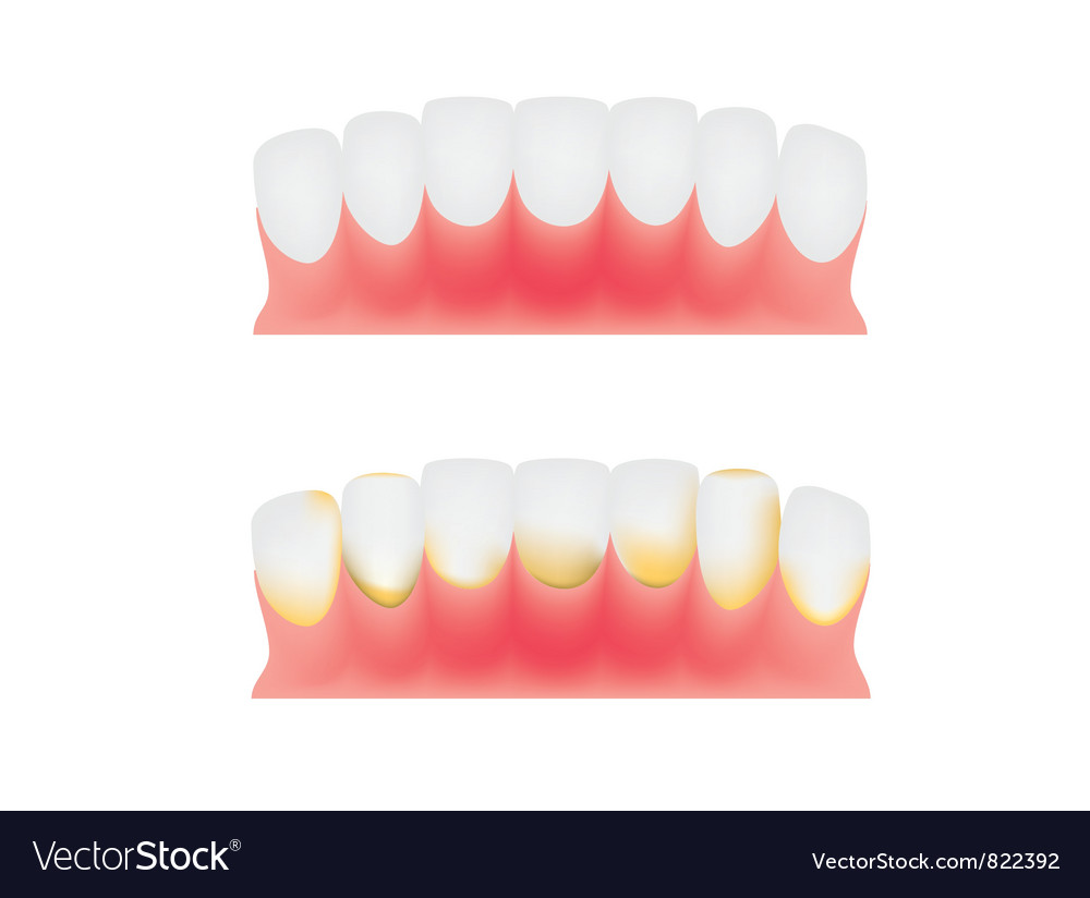 Teeth and gums vector | Price: 1 Credit (USD $1)