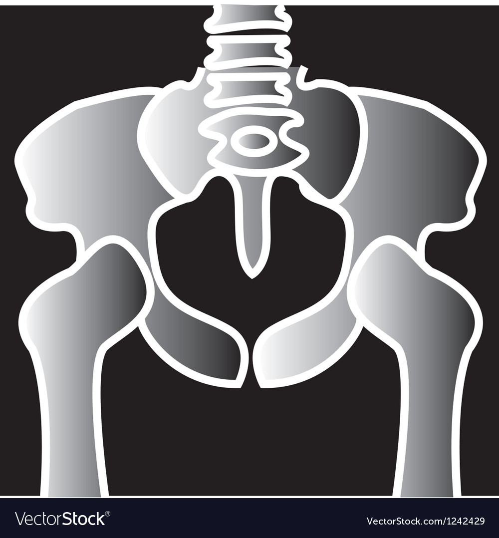 Xray pelvic bones vector | Price: 1 Credit (USD $1)