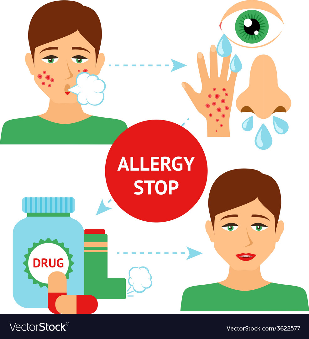 Allergy prevention concept vector | Price: 1 Credit (USD $1)