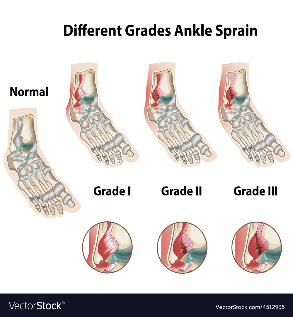 Different grades of ankle sprains vector | Price: 1 Credit (USD $1)