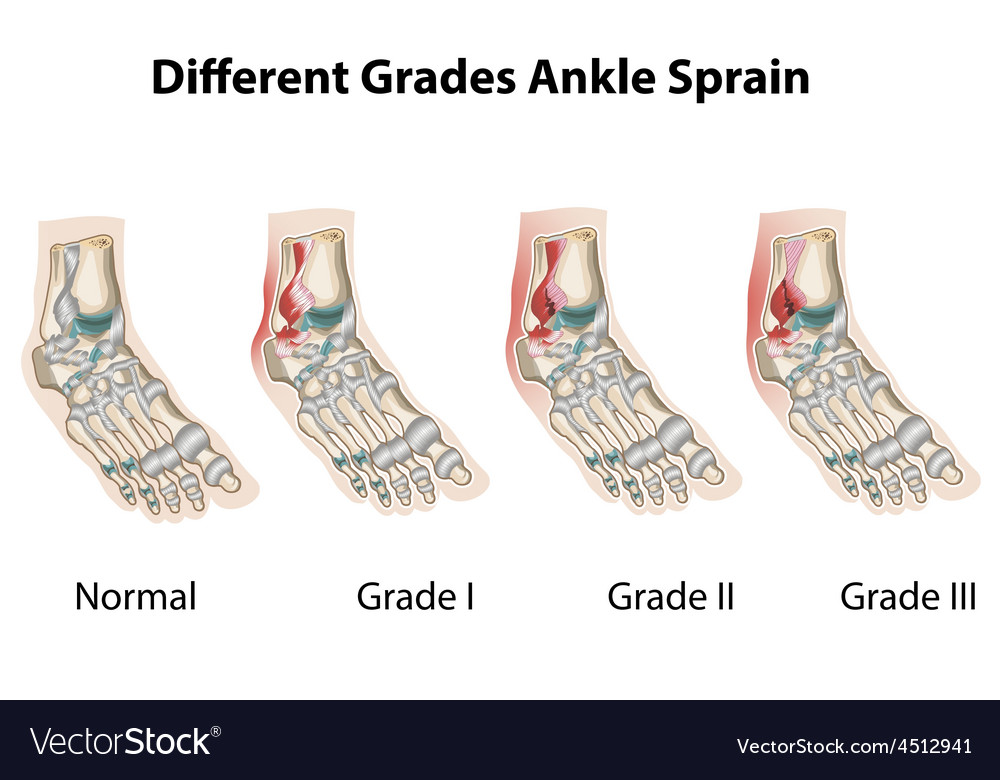 Different grades of ankle sprains1 vector | Price: 1 Credit (USD $1)