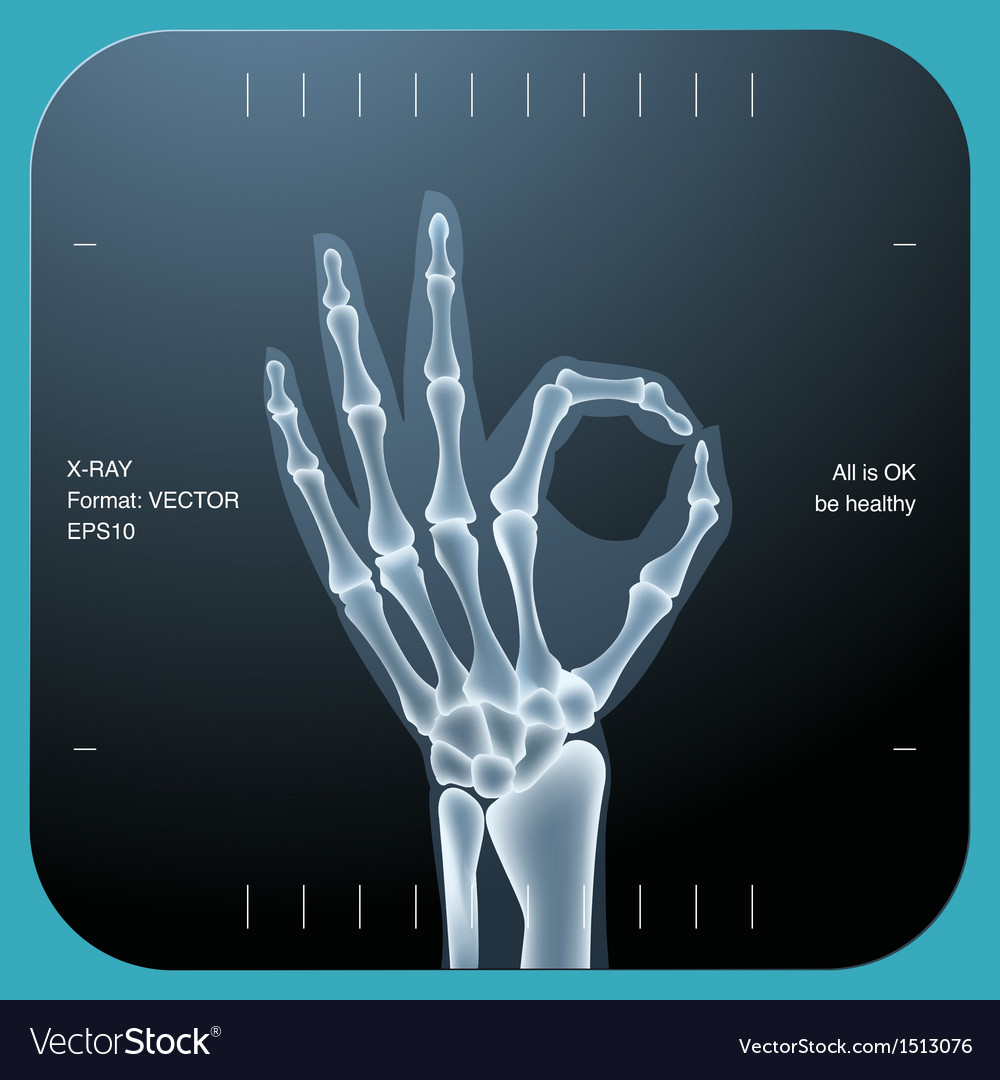 X-ray of both human hand - ok symbol vector | Price: 1 Credit (USD $1)