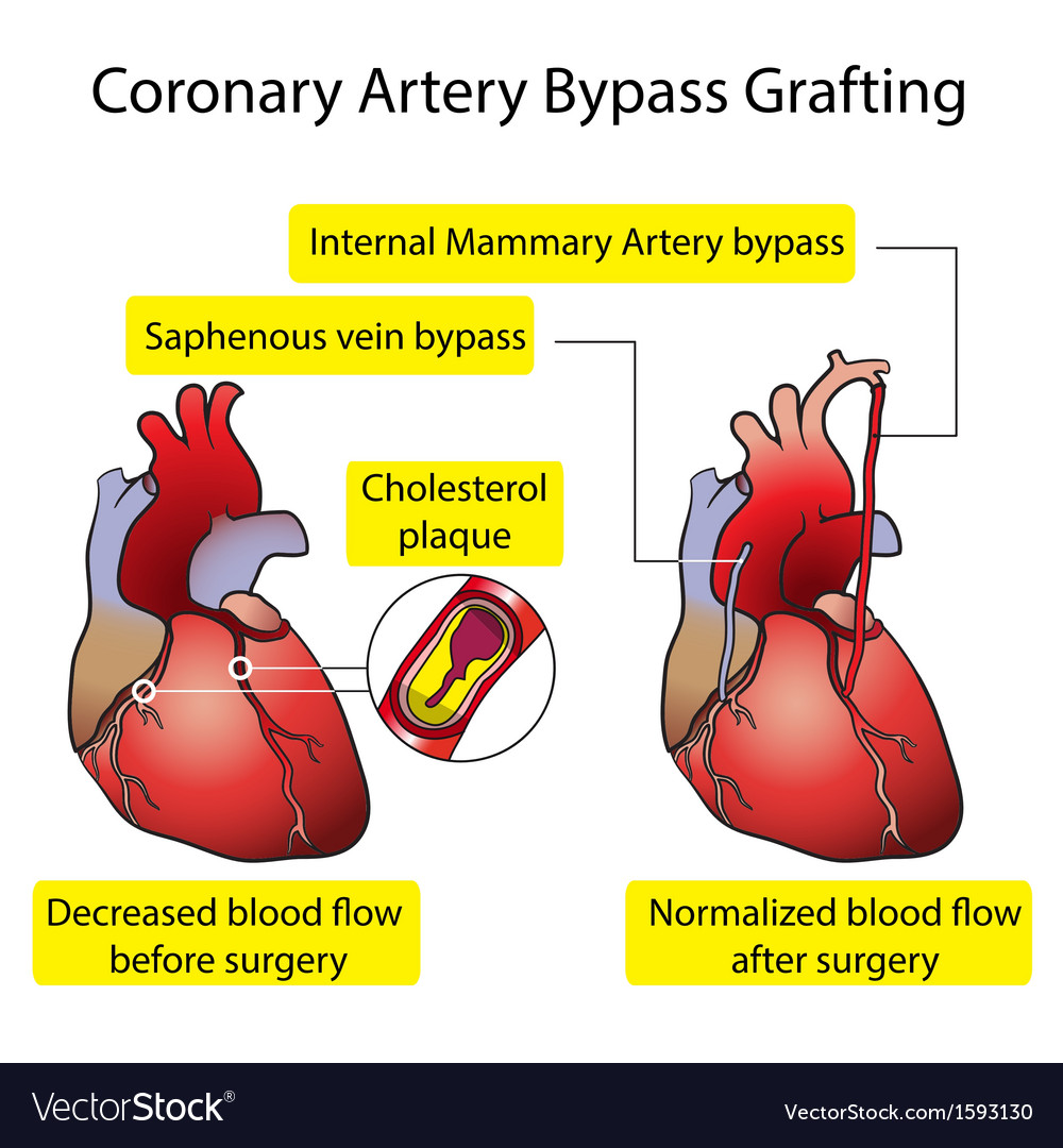 Vessels of the heart bypass surgery vector | Price: 1 Credit (USD $1)
