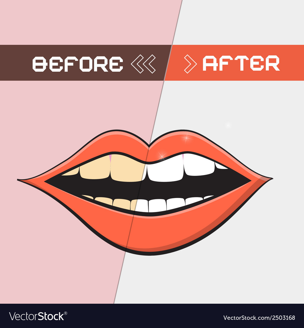 Retro mouth - cleaning teeth symbol vector | Price: 1 Credit (USD $1)