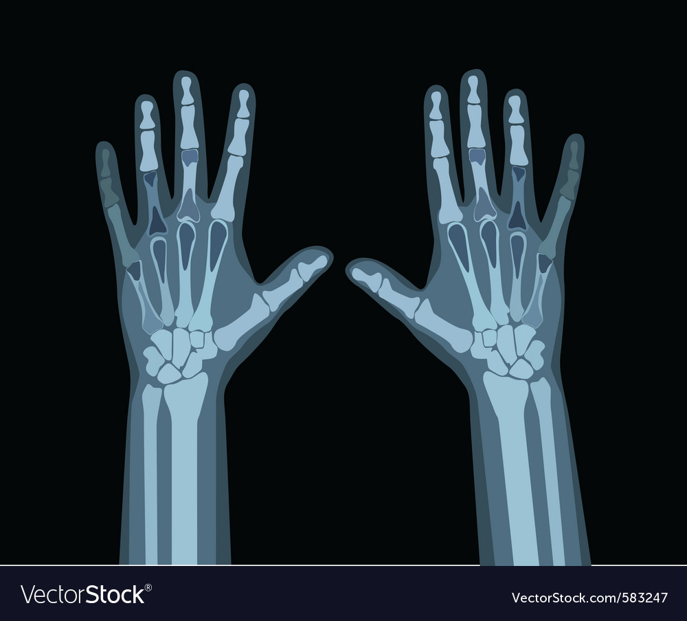 Xray hands vector | Price: 3 Credit (USD $3)