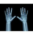 Xray hands vector
