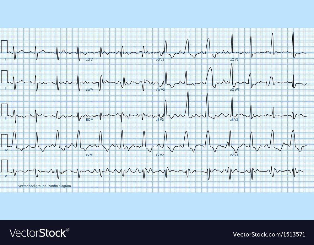 Cardio diagram blue vector   Price: 1 Credit (USD $1)