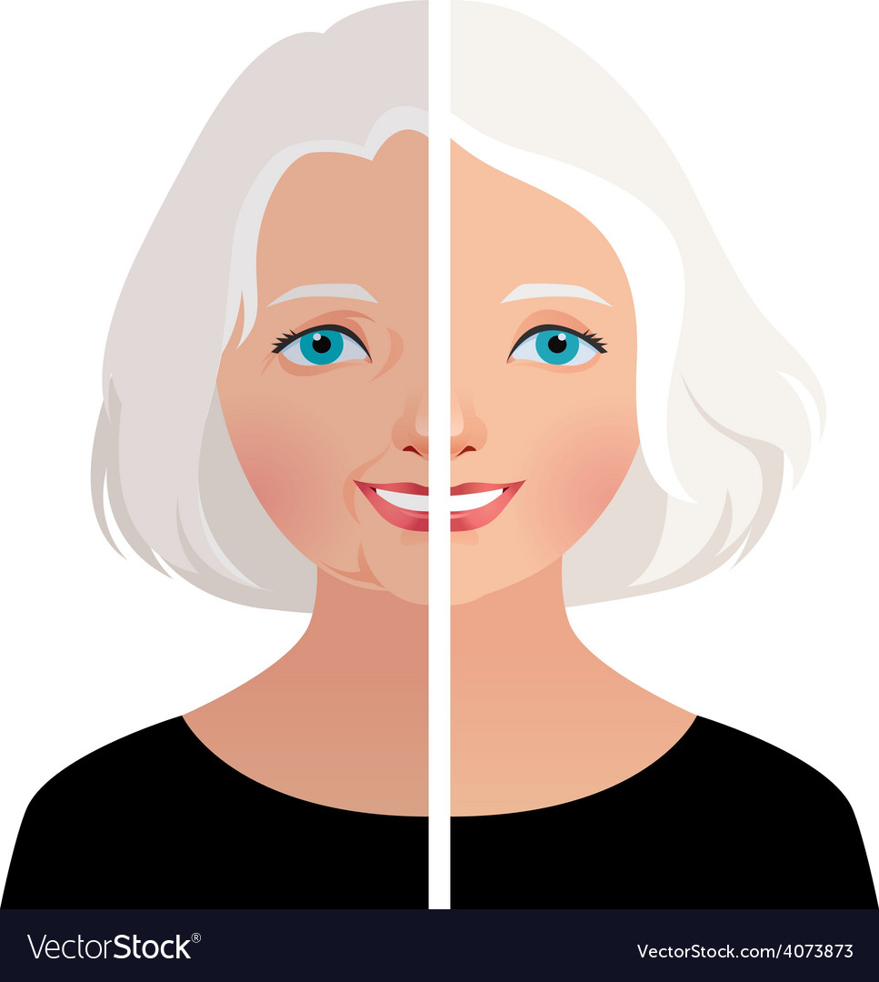 Mature woman before and after cosmetic operation vector | Price: 1 Credit (USD $1)