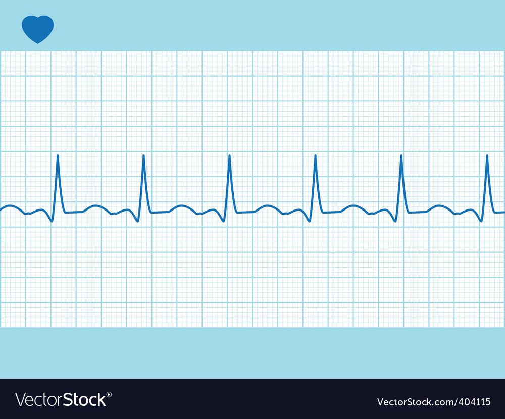 Heart cardiogram fully editable vector | Price: 1 Credit (USD $1)
