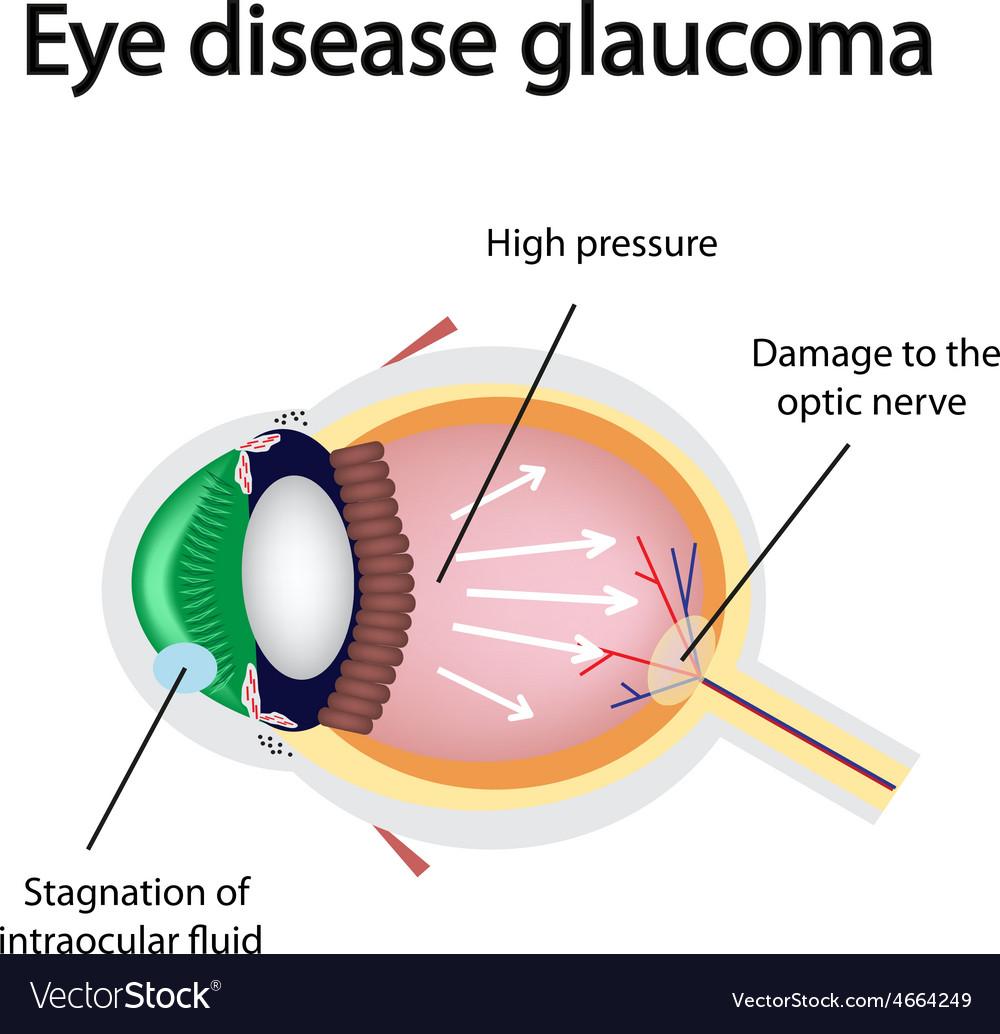 Glaucomatous eye violations causing glaucoma vector   Price: 1 Credit (USD $1)