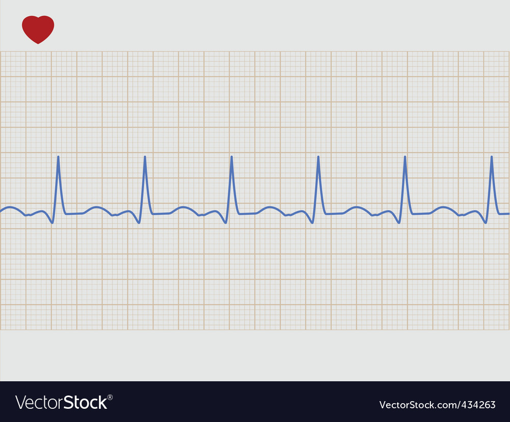 Electronic cardiogram vector | Price: 1 Credit (USD $1)