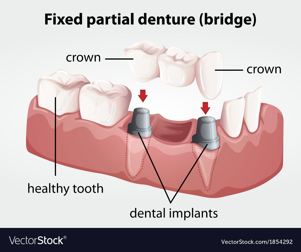 Fixed partial denture bridge vector | Price: 1 Credit (USD $1)