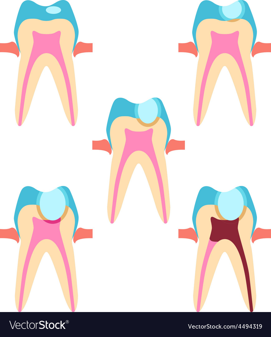 Stage of caries vector | Price: 1 Credit (USD $1)