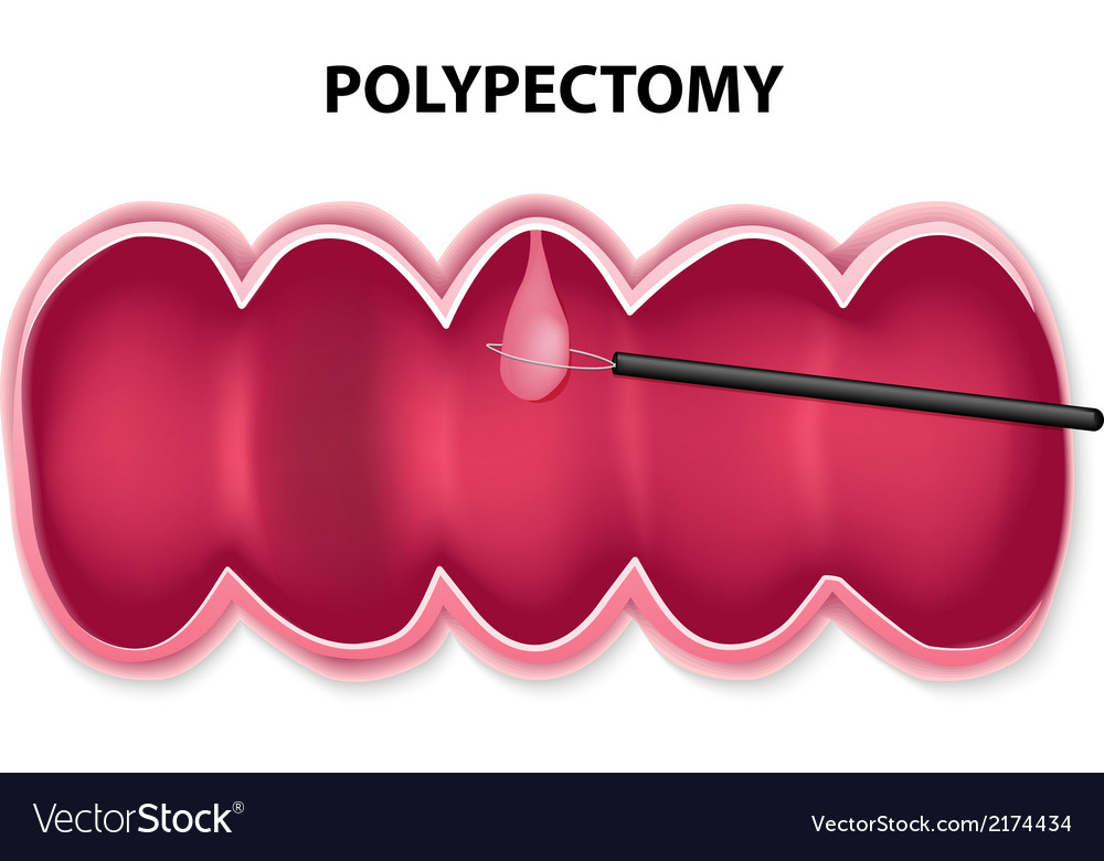 Polypectomy vector | Price: 1 Credit (USD $1)