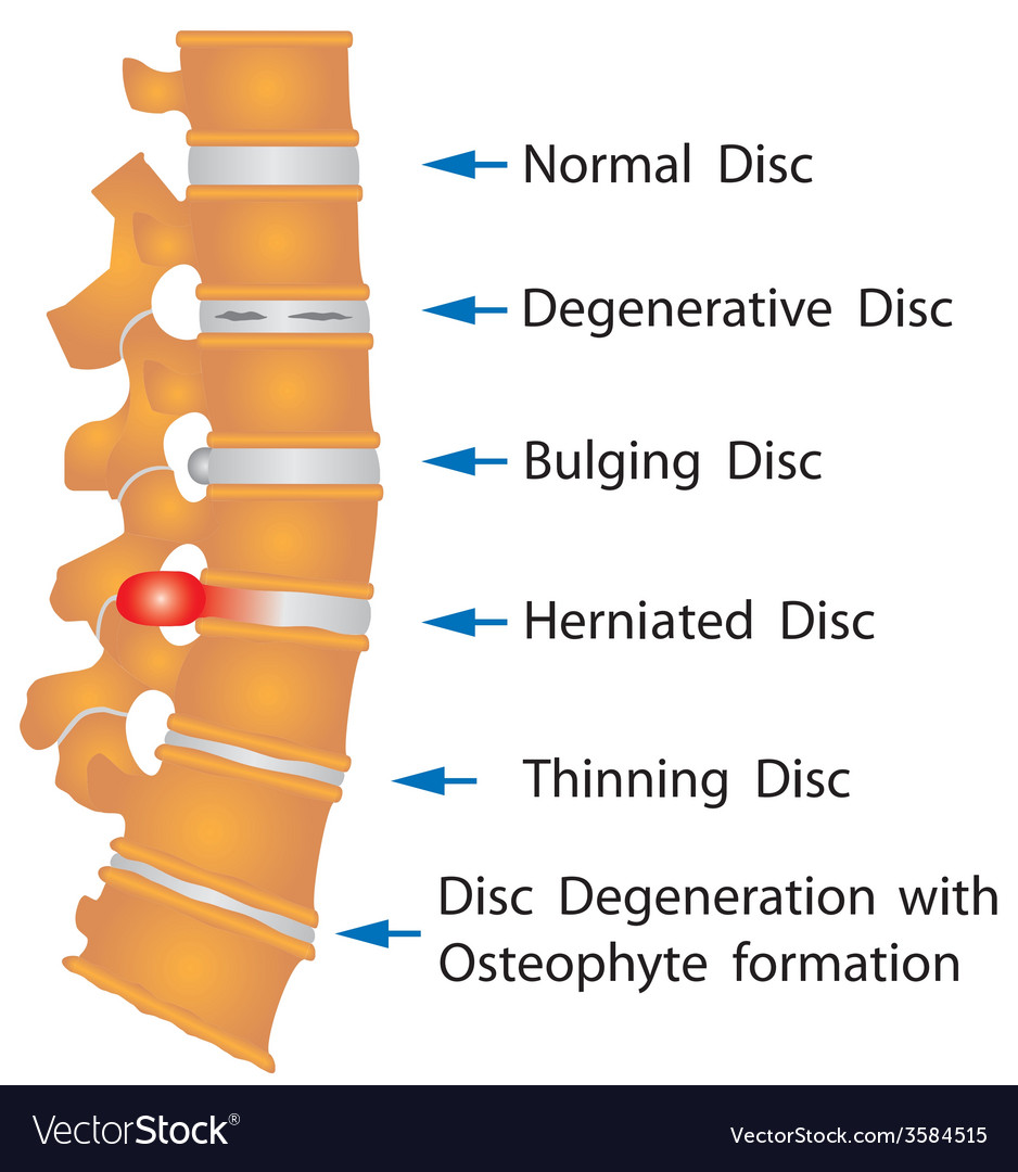 Spine conditions vector | Price: 1 Credit (USD $1)