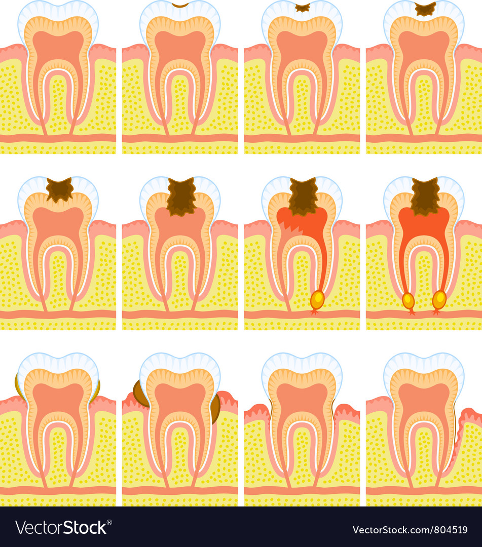 Internal structure of tooth vector | Price: 3 Credit (USD $3)