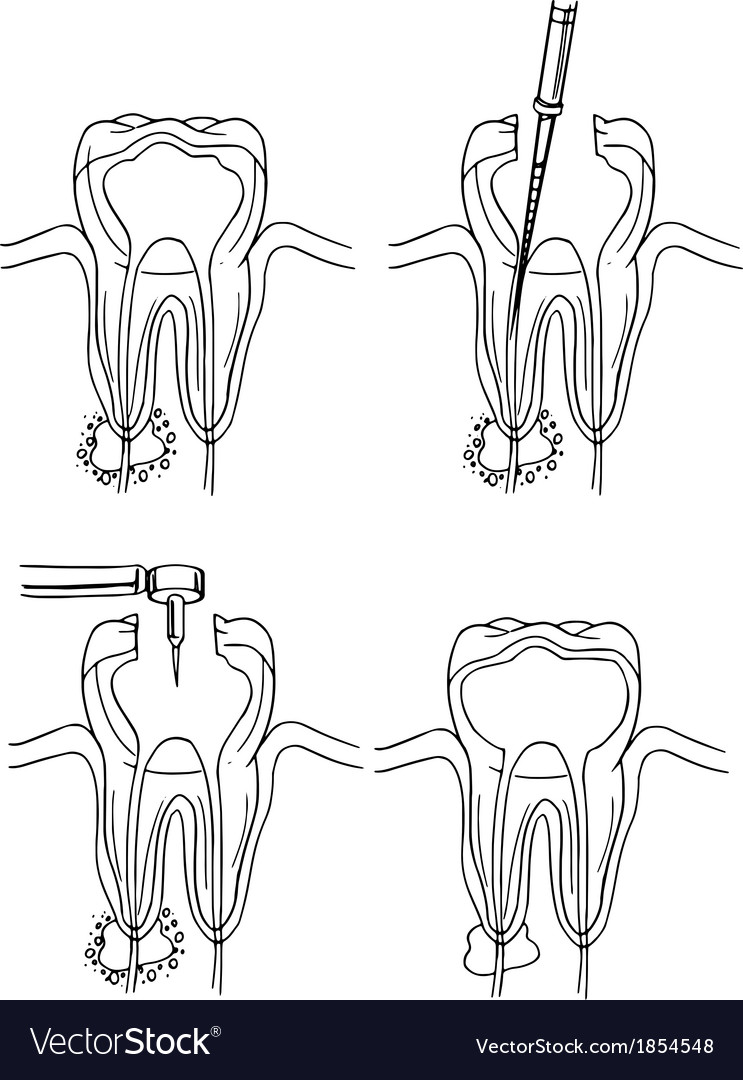 Root canal procedure vector | Price: 1 Credit (USD $1)