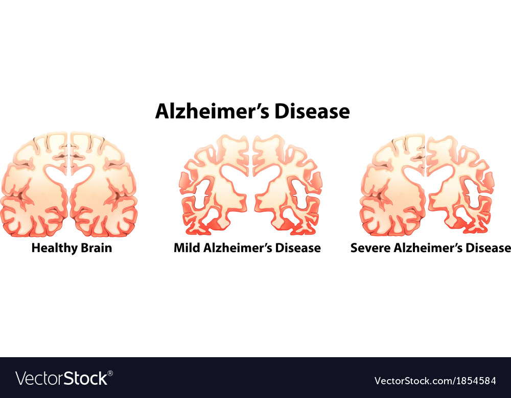 Alzheimers disease vector | Price: 1 Credit (USD $1)