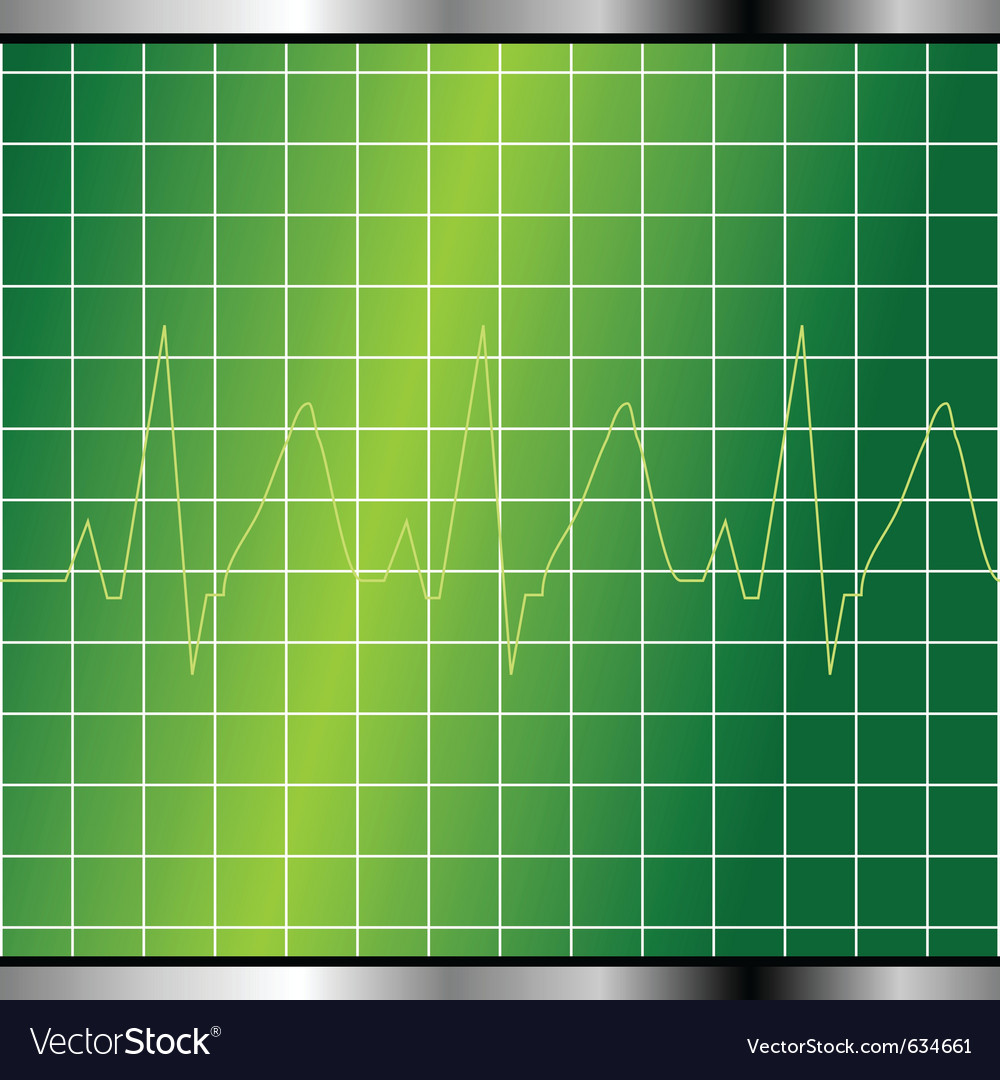 Electrocardiogram monitor vector | Price: 1 Credit (USD $1)