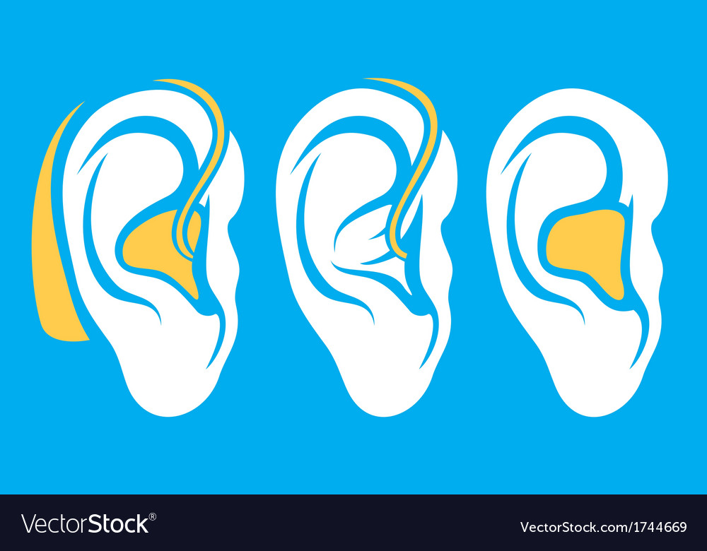 Ear hearing aid deaf problem icons collection vector | Price: 1 Credit (USD $1)