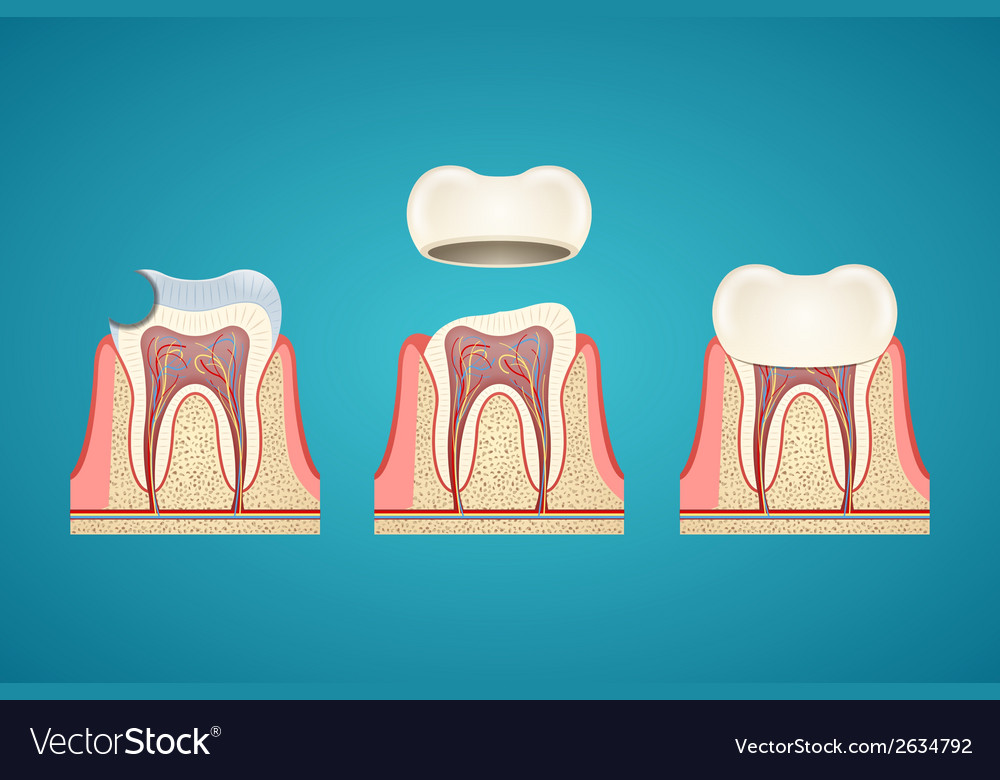 Breaking teeth vector | Price: 1 Credit (USD $1)