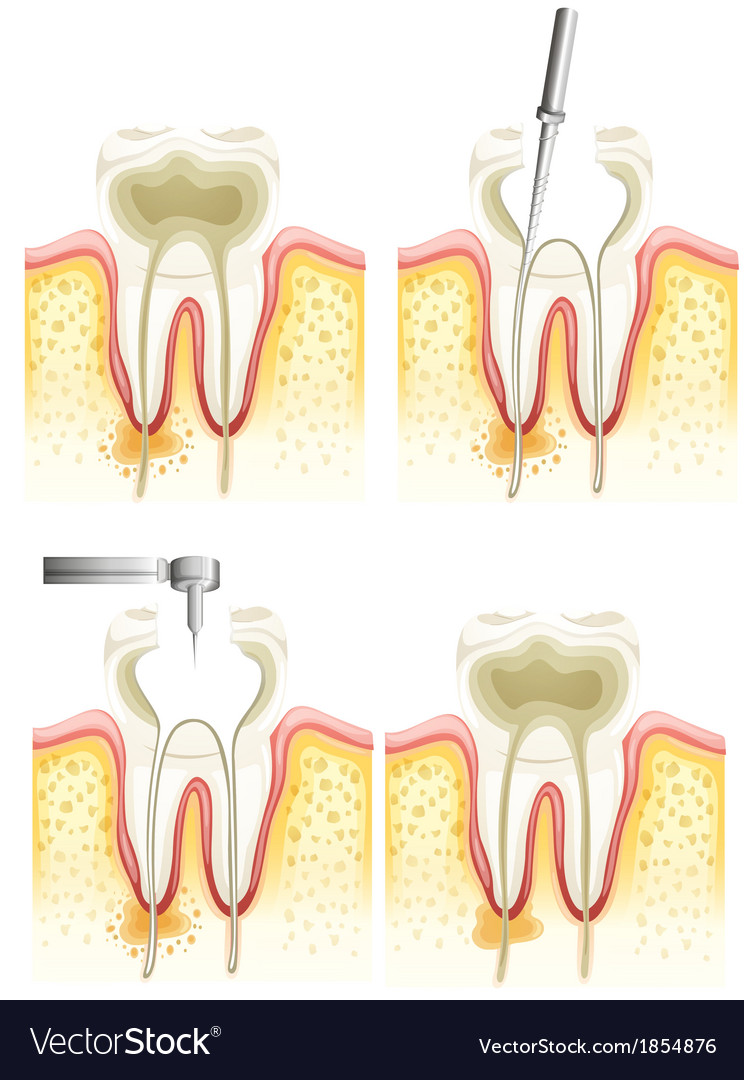 Root canal process vector | Price: 1 Credit (USD $1)