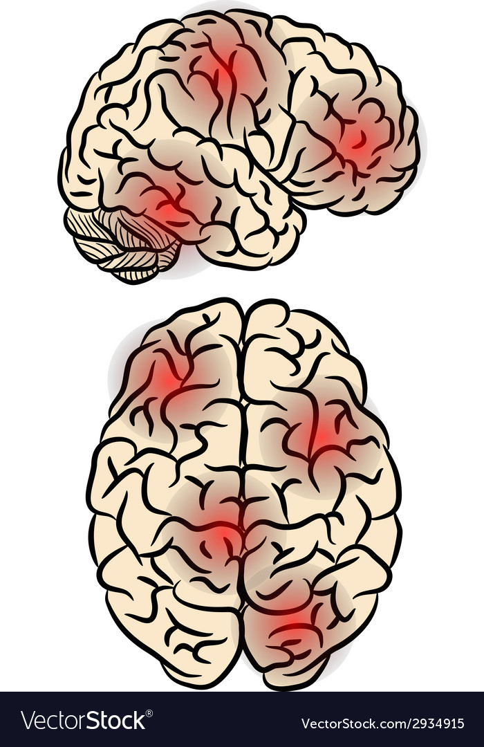 Brain fever vector | Price: 1 Credit (USD $1)