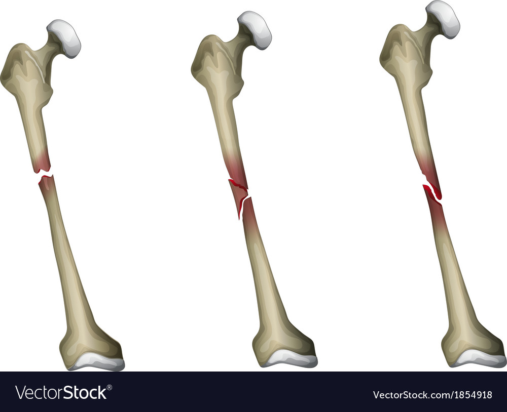 Bone fracture vector | Price: 1 Credit (USD $1)