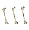 Bone fracture vector