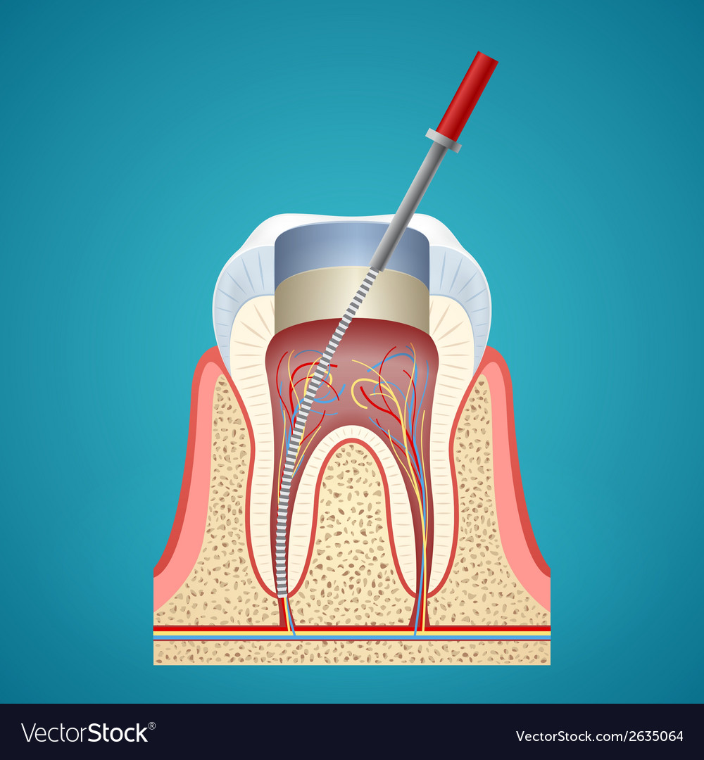 Dental injection in cutaway vector | Price: 1 Credit (USD $1)