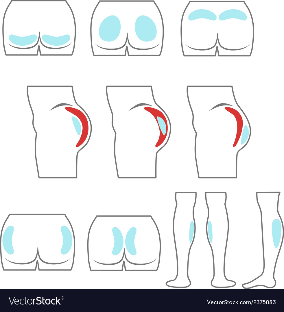 Location buttocks and calf implants vector | Price: 1 Credit (USD $1)