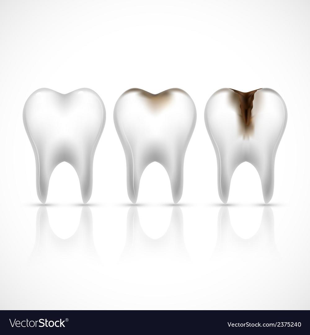 Teeth realistic set vector | Price: 1 Credit (USD $1)